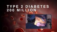Surgical Treatments for Type 2 Diabetes