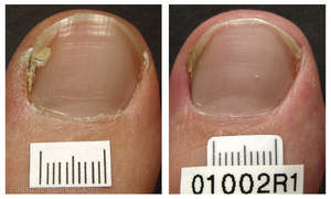 L: Before PinPointe(TM) FootLaser(TM); R: After PinPointe(TM)FootLaser(TM)