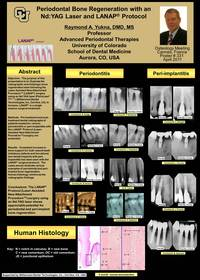 Dr. Raymond A. Yukna's poster, Periodontal Bone Regeneration with an Nd:YAG Laser and the LANAP Protocol, presented at the International Osteology Symposium.