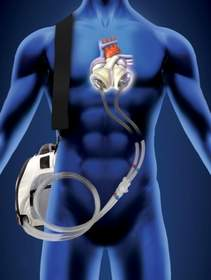 Freedom driver, portable driver, SynCardia, Total Artificial Heart