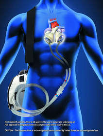 SynCardia, Freedom driver, Total Artificial Heart, Heart Transplant, Heart Failure, Donor Heart