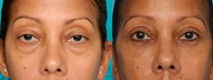plastic surgery,eyelid surgery,blepharoplasty,dr patrick sullivan, rhode island
