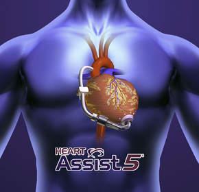 MicroMed Cardiovascular HeartAssist 5 LVAD