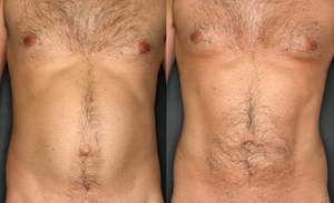 Before and after picture of male liposuction procedure.
