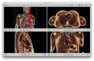 Touch of Life Technologies VH Dissector 5 anatomy atlas with 3D & cross sections from 3 perspectives