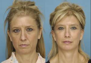 Facial rejuvenation patient in Rhode Island