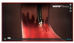 WATS3D Biopsy Overiew Animation