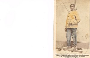 Photo of Wilson Chinn, slave from Louisiana in 1863.