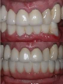 Implant Supported Bridges - Before and After Pictures