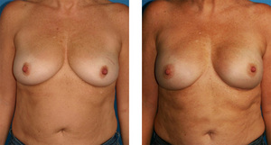 one stage breast reconstruction