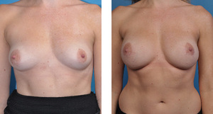 Cassileth One-stage breast reconstruction