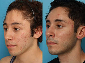 Dr. Patrick K. Sullivan used fat injections to treat this patient's facial deformities.
