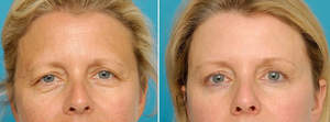 Dr. Patrick K. Sullivan's patient was treated with minimally invasive brow lift surgery