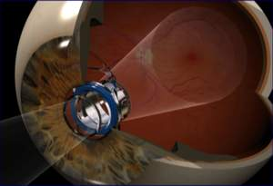 To find out more about this life-changing procedure for folks with end-state age-related macular degeneration (AMD), go to www.centrasight.com.