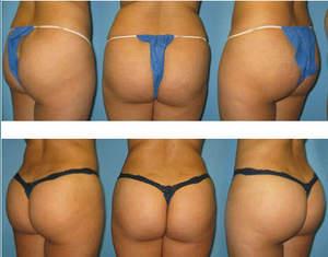Brazilian Butt Lift by Dr Rick Rosen