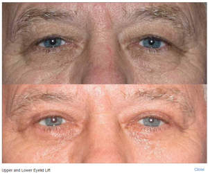 eyelid lift by Dr. Roy David
