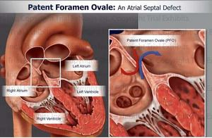 Patent Foramen Ovale.