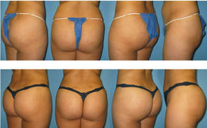 Brazilian Butt Lift Before and After Photos