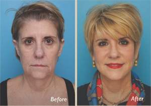 Before and After Facelift - Performed by Rhode Island Plastic Surgeon Dr. Patrick Sullivan