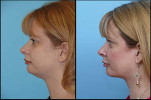 1 Hr Neck Liposuction Before and After