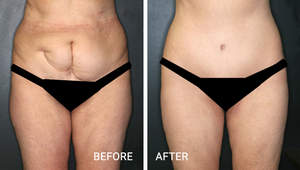Before and After Tummy Tuck - Performed by Annapolis Plastic Surgeon Dr. Marcia Ormsby