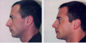 male rhinoplasty before and after photo newport beach