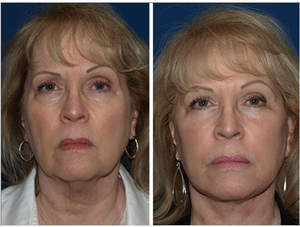 facial fat transfer female