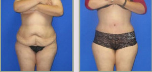 Full Tummy Tuck Before and After
