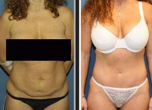For Many People That Lose Significant Weight Tummy Tuck Surgery Is