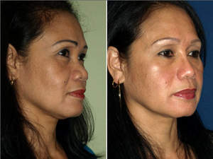 asian rhinoplasty