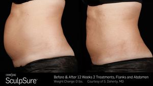 SculpSure Treatment Before and After