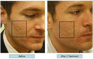 http://sdlaserspa.com/services/acne-clearing/