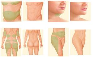 Liposuction procedure areas