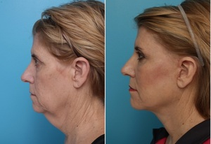 Before and After Facelift -- Performed by Rhode Island Plastic Surgeon Dr. Patrick K. Sullivan