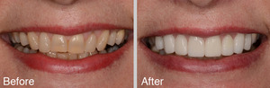 Stained Teeth Before and After Photo