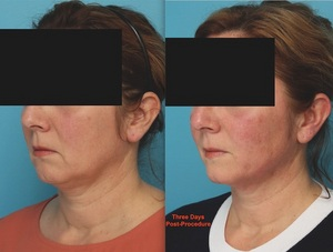 Before and After Silhouette InstaLift - Performed by Dr. Patrick Sullivan