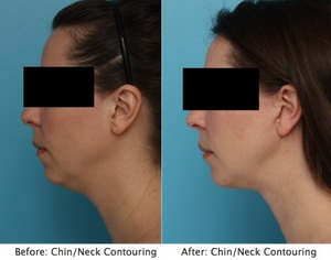 Before and After Neck Contouring - Performed by Rhode Island Plastic Surgeon Dr. Patrick K. Sullivan